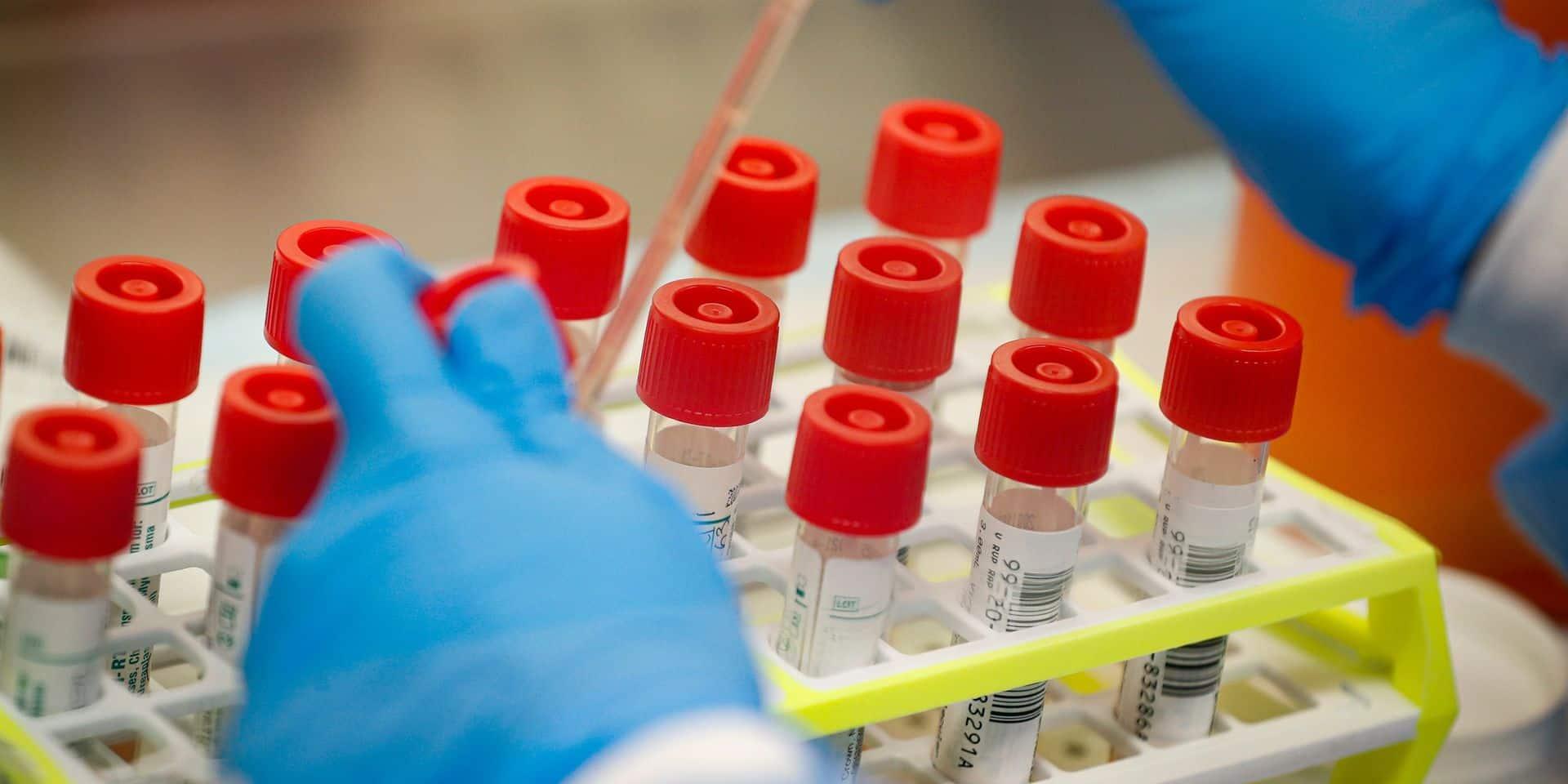 """Les tests rapides pour le coronavirus interdits: """"Ils donnent un faux résultat négatif"""""""