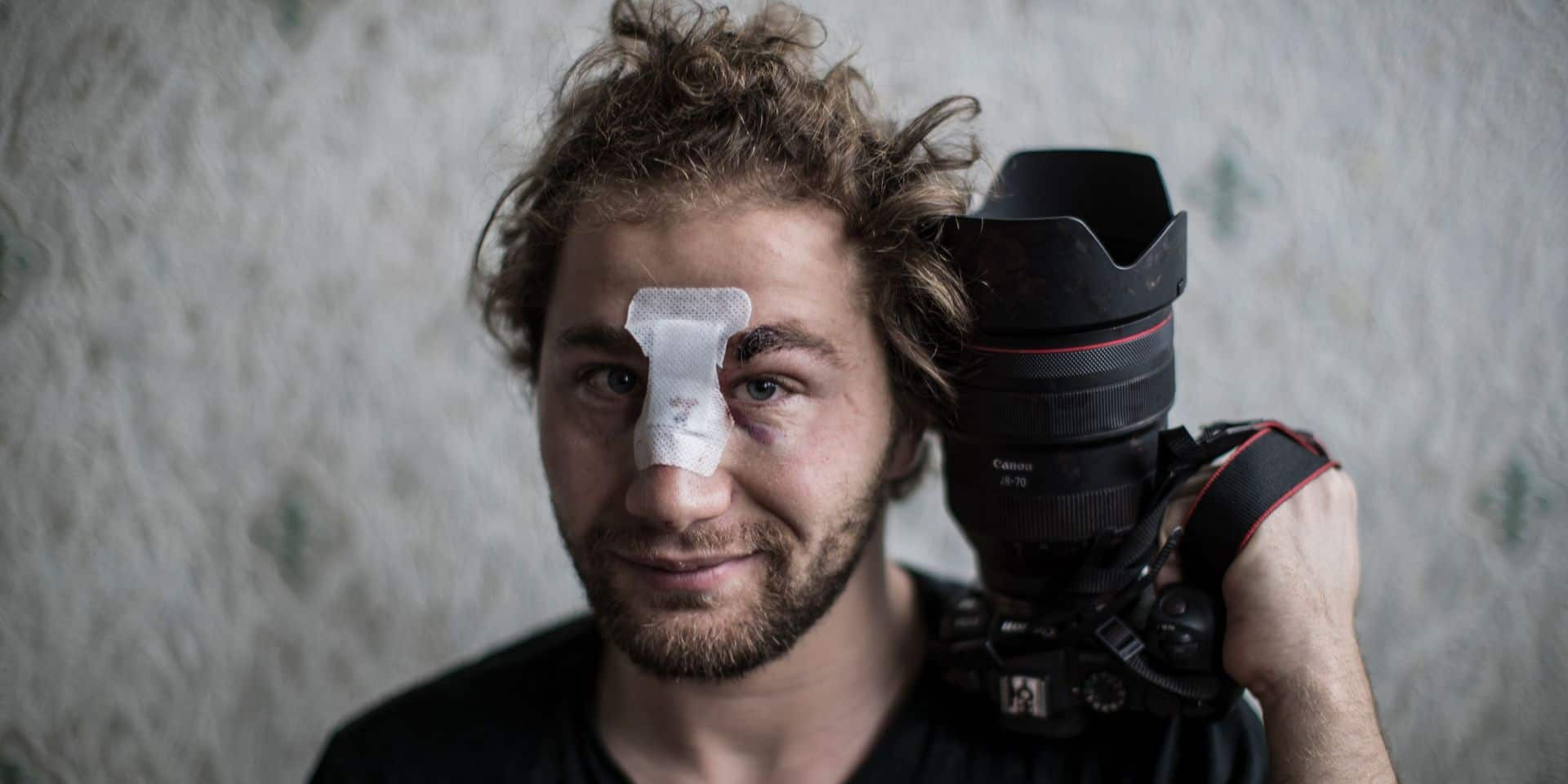 Ouverture d'une enquête pour le photographe syrien blessé samedi à Paris